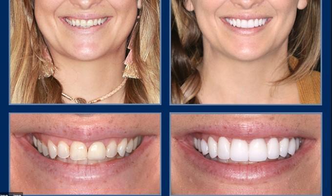 Голливудская улыбка в Турции стоматологическая операция
